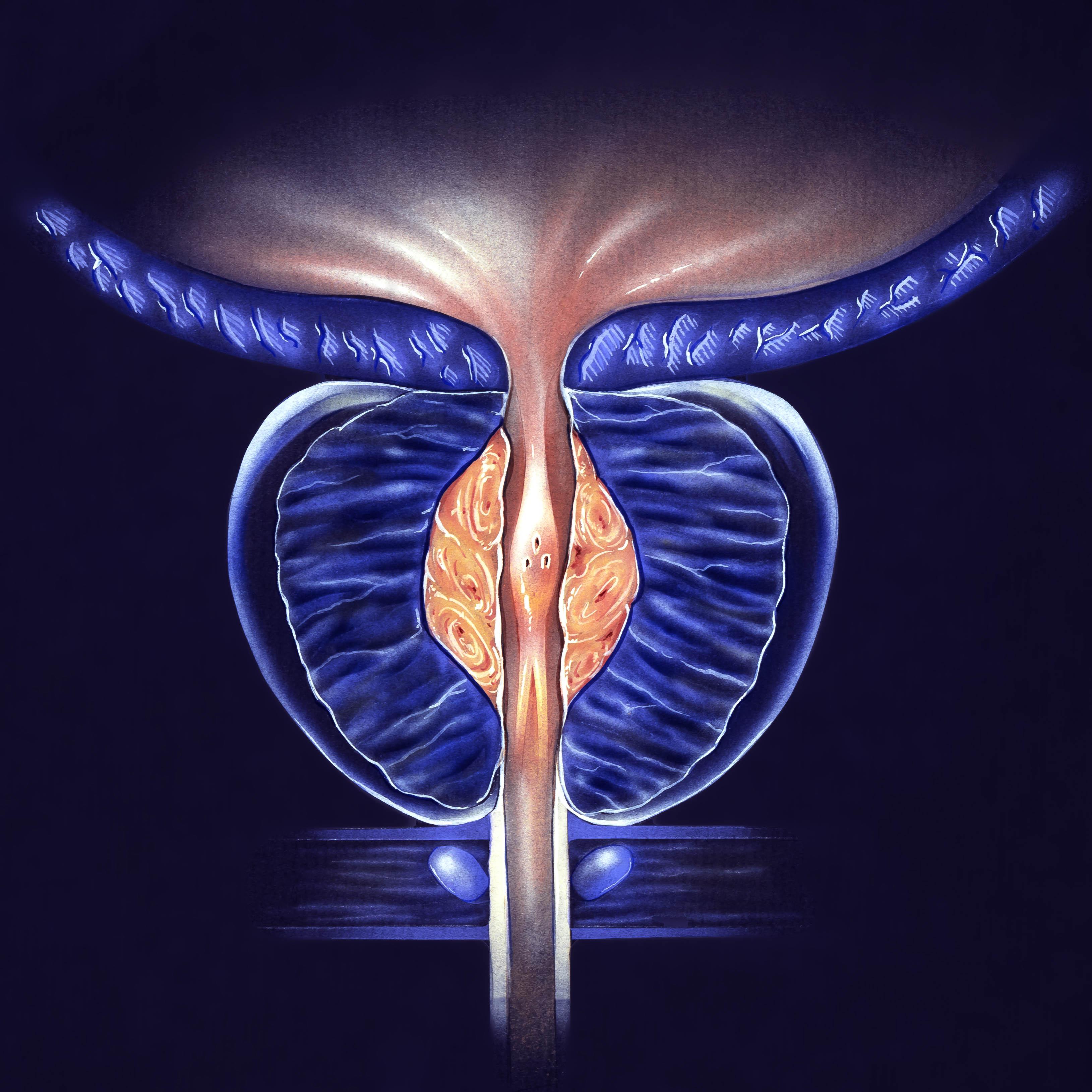 Хронический конгестивный бактериальный простатит простатит приводит к раку